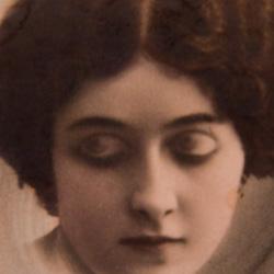 Eyes or Eyelids Illusion