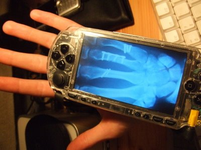 X Ray Transparent Sony PSPs