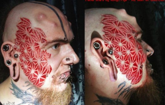 face scarification